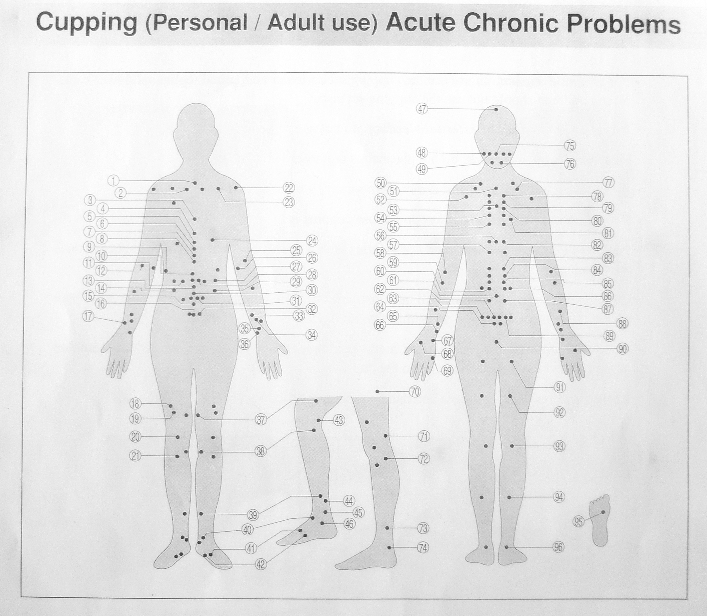 Cupping Therapy Side Effects: Where To Purchase Hijaamah Kits